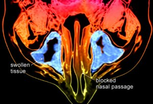 PRinc_rm_MRI_scan_of_swollen_sinus_tissue