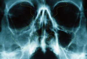PRinc_rm_x-ray_of_acute_sinusitis