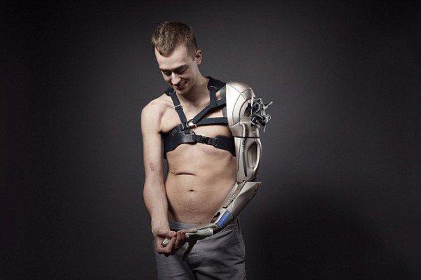 cyborg-arm-600x400